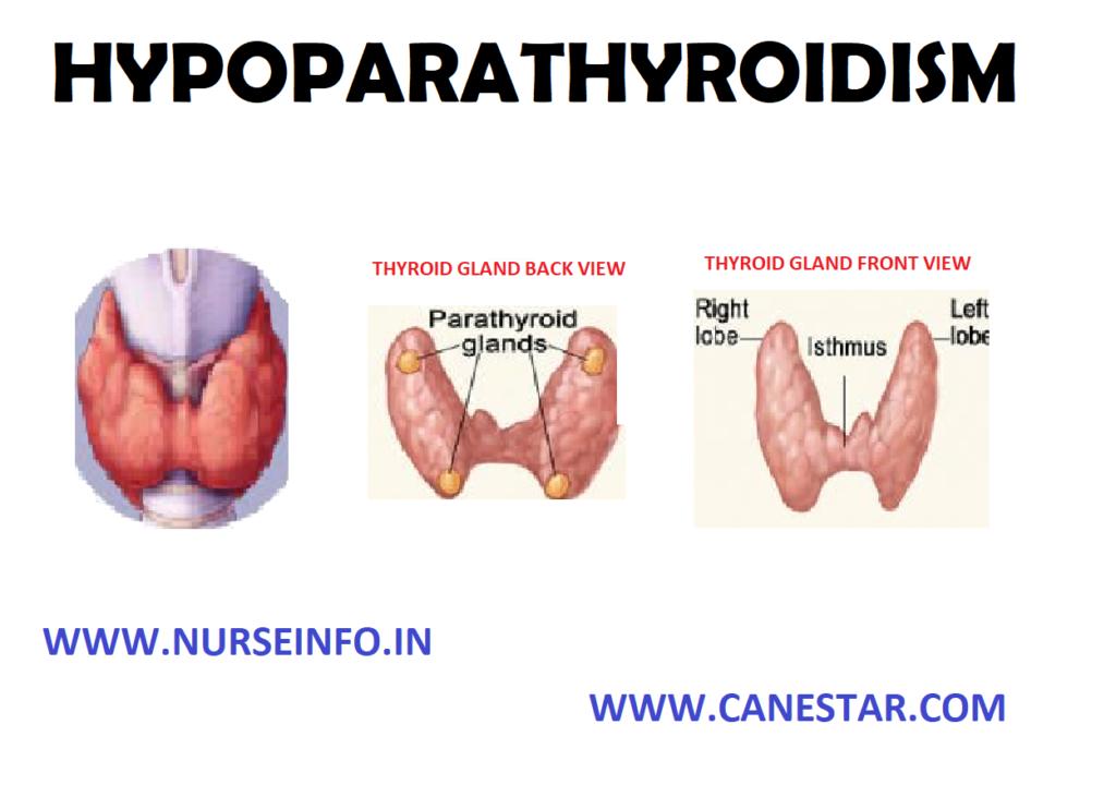 HYPOPARATHYROIDISM – Etiology, Risk Factors, Diagnostic Evaluation, Complication and Management