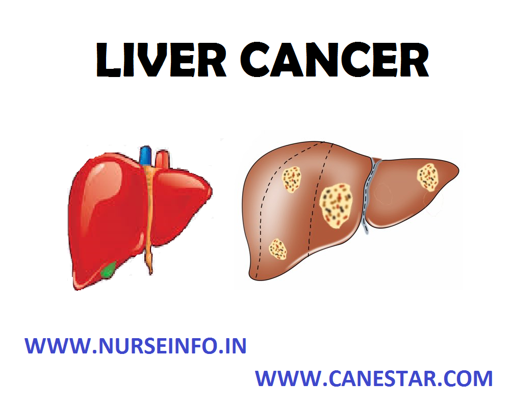 LIVER CANCER – Definition, Classification, Etiology and Risk Factors, Signs and Symptoms, Diagnostic Tests and Management