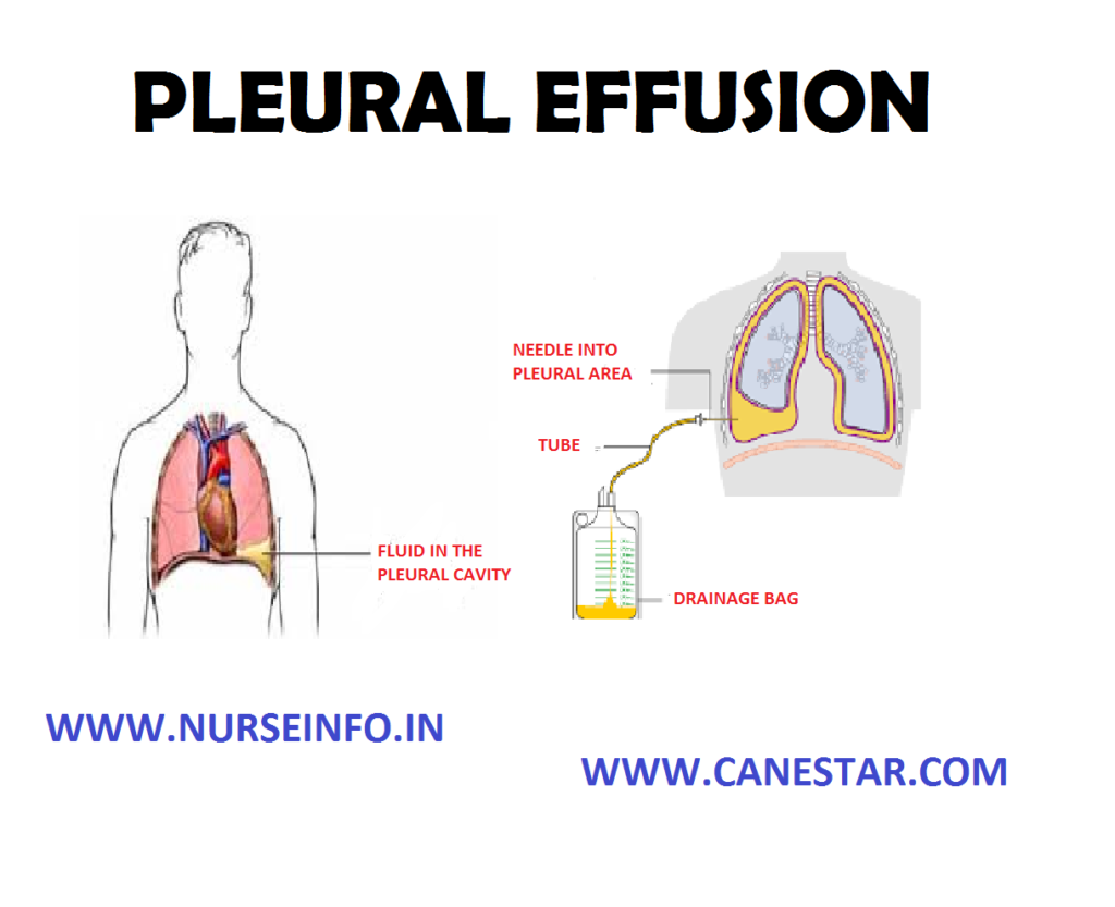 PLEURAL EFFUSION – Etiology, Signs and Symptoms, Diagnostic Evaluation and Management