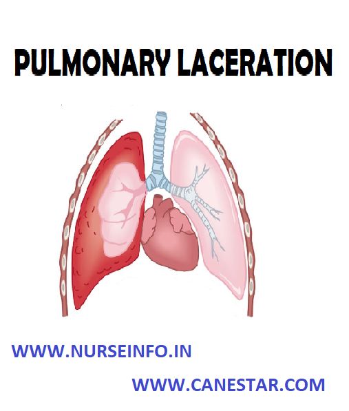 PULMONARY LACERATION – Etiology, Classification, Pathophysiology, Diagnostic Evaluation and Management