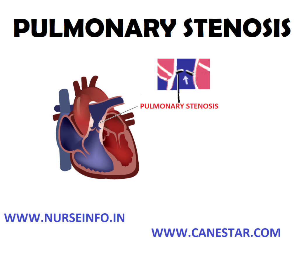 PULMONARY STENOSIS – Etiology, Risk Factors, Signs and Symptoms, Diagnostic Evaluations and Management