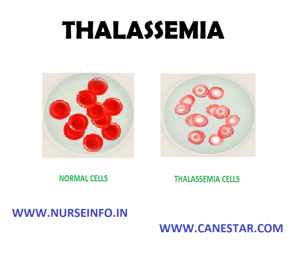 THALASSEMIA – Types, Signs and Symptoms, Diagnostic Evaluations and Management
