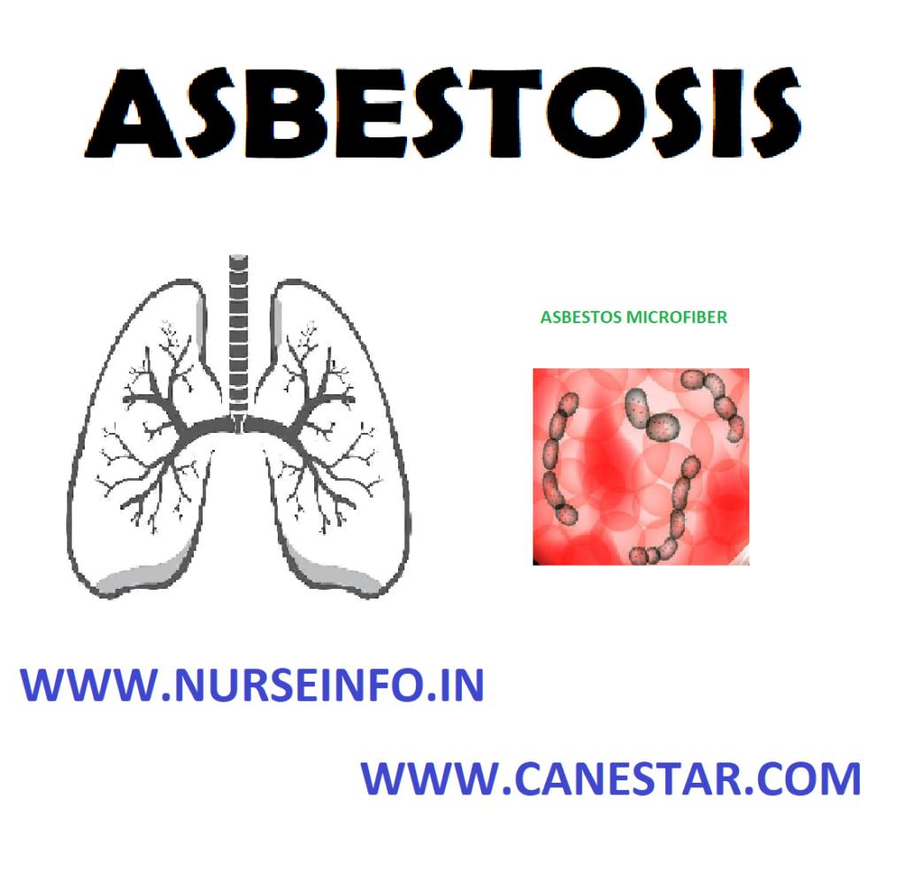 ASBESTOSIS – Etiology, Symptoms, Pathophysiology, Diagnosis and Treatment