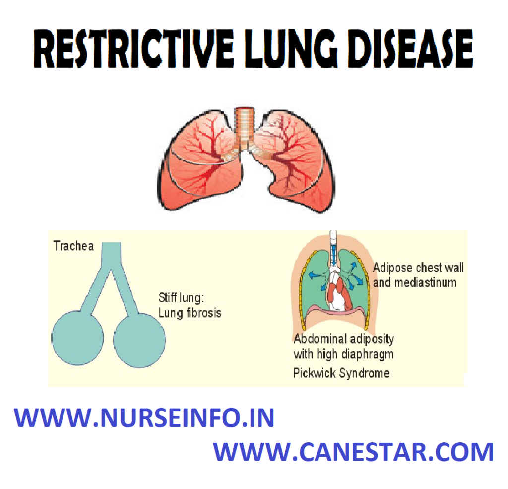 RESTRICTIVE LUNG DISEASES – Etiology, Pathophysiology, Signs and Symptoms, Diagnostic Evaluation and Management