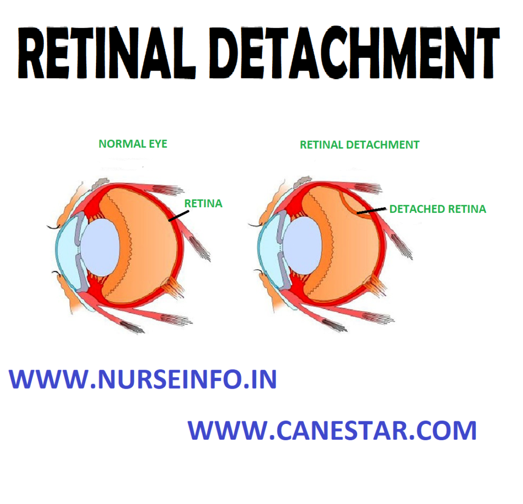 RETINAL DETACHMENT - Types and Causes, Risk Factors, Signs and Symptoms, Diagnostic Evaluation and Management