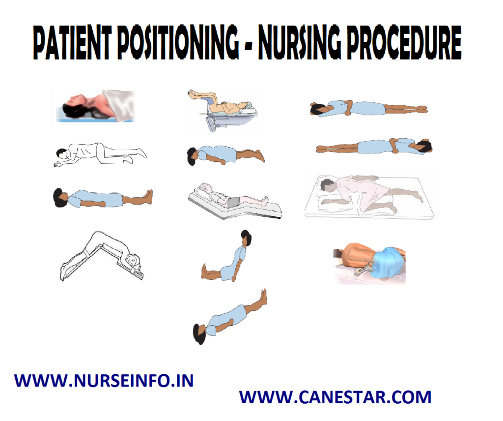 PATIENT POSITIONING – Purpose, Principles, Factors Involved, Types, General Instructions, Preliminary Assessment, Equipment and Procedure