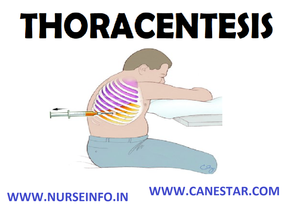 THORACENTESIS – Definition, Purpose, General Instructions, Preliminary Assessment, preparation of the Patient and Environment, Equipment, Procedure, After Care and Complications
