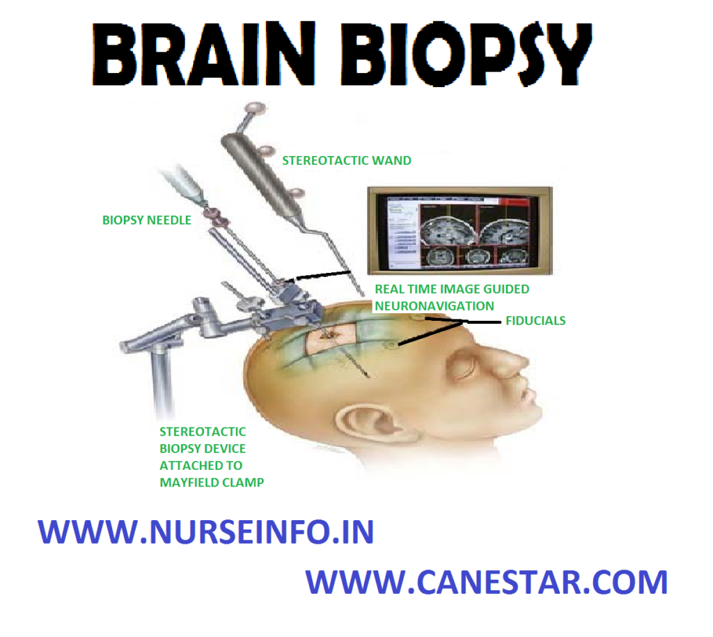 BRAIN BIOPSY – Reason for Brain Biopsy, Procedure, Risk Factors, Preparation, After Care and Nurse's Role in Stereotactic Brain Biopsy