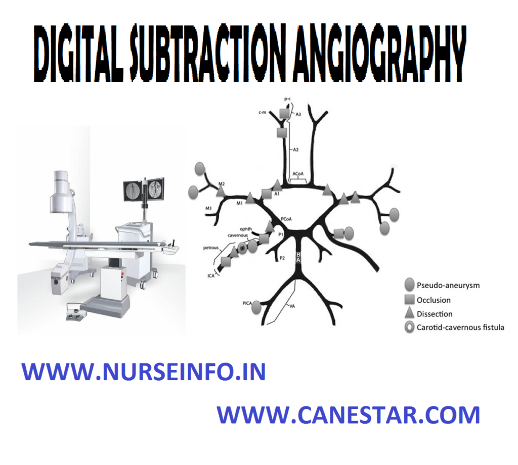 DIGITAL SUBTRACTION ANGIOGRAPHY – Definition, Purpose, Indications, Factors Interference, Special Instructions, Client Preparation, Procedure, After Care and Disadvantages