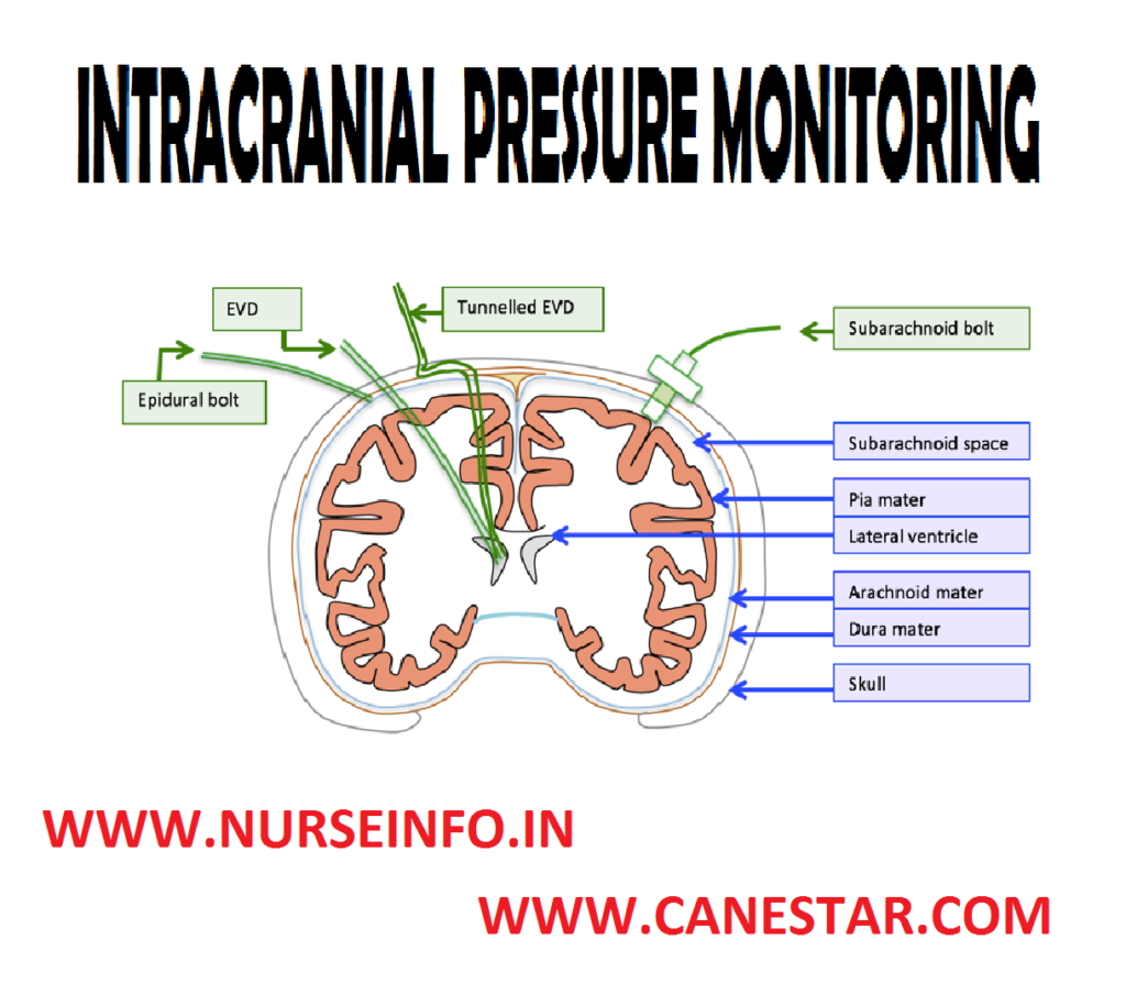 INTRACRANIAL PRESSURE MONITORING – Indications, Classification, General Instructions, Client and Environment Preparation, Equipment, Procedure, Interpreting ICP Waveforms and After Care