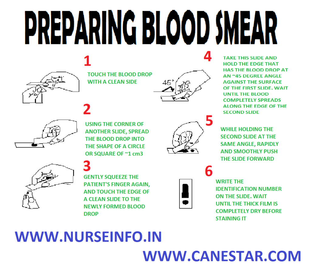 PREPARING BLOOD SMEAR – Purposes, Equipment, Procedure and Blood Smear Preparation to Rule Out Malaria (COMMUNITY HEALTH NURSING)