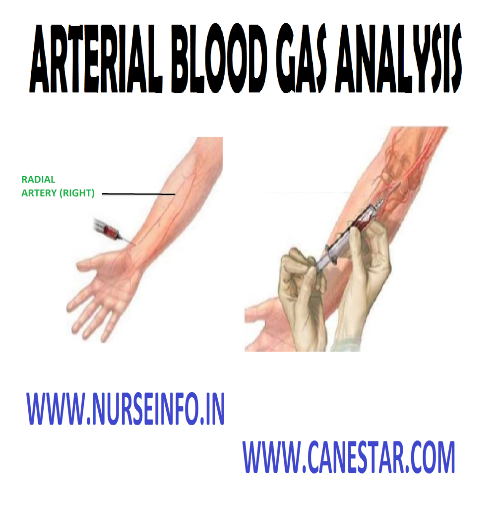 ARTERIAL BLOOD GAS ANALYSIS – Definition, Components of ABG, Purpose, Indication, Interfering Factors, General Instructions, Client and Environment Preparation, Equipment Needed, Obtaining Sample by Direct Puncture, Procedure, Post-Procedural Care, Interpretation of ABG and Clinical Symptoms