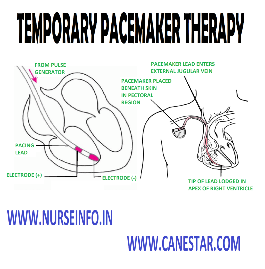 TEMPORARY PACEMAKER THERAPY - Definition, Purpose, Equipment, Pre-temporary Pacemaker Care and After Care
